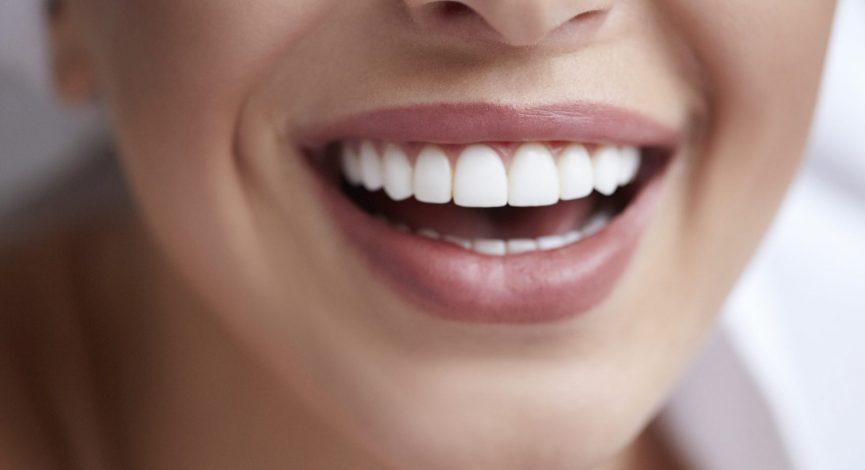 رفع زردی دندان ها با روش های طبیعی و موثر